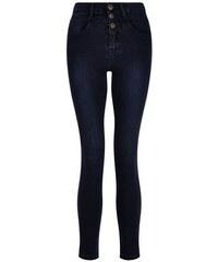 New Look Teenager – Hochgeschnittene marineblaue Skinny-Jeans