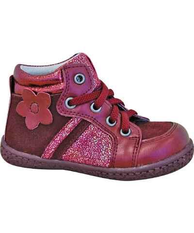 d578a2d77b3d Kolekcia Protetika Červené Detské topánky z obchodu Bambino.sk - Glami.sk