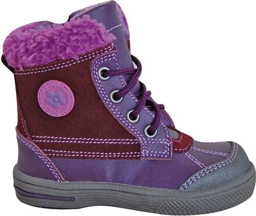 Protetika Dívčí zimní boty Kern - fialové - Glami.cz bf8ce9fff7
