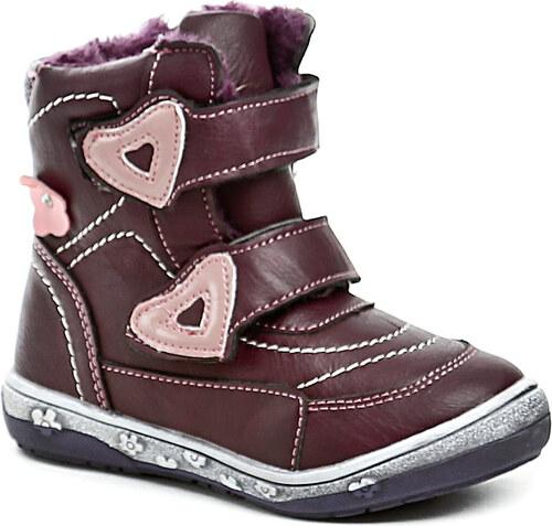 Dětská obuv Magnus 46-0164-R1 bordó dívčí zimní boty - Glami.cz 10be343066
